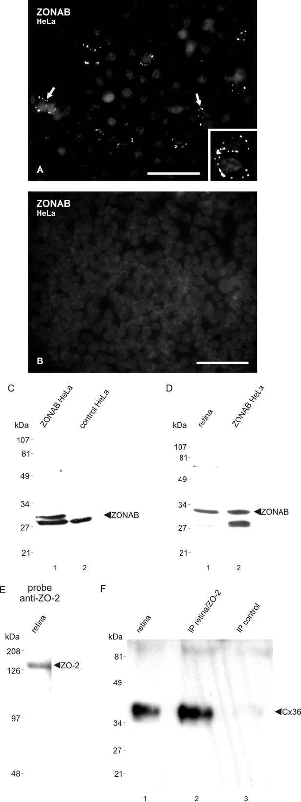 ZONAB Antibody