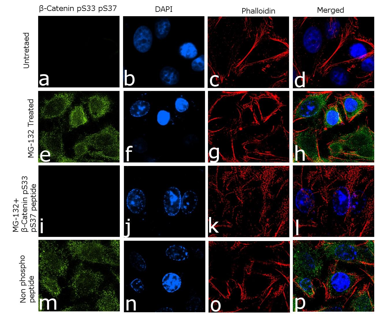 Phospho-beta Catenin (Ser33, Ser37) Antibody in Cell treatment