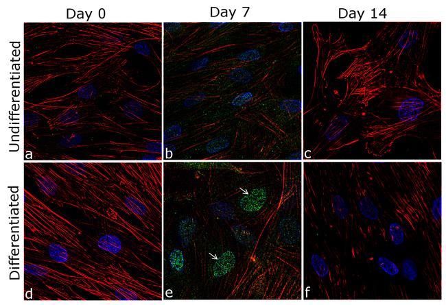 RUNX2 Antibody in Cell Treatment