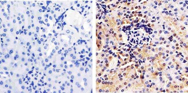 Annexin A1 Antibody in Immunohistochemistry (Paraffin) (IHC (P))