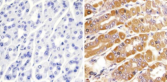 RAB11A Antibody in Immunohistochemistry (Paraffin) (IHC (P))