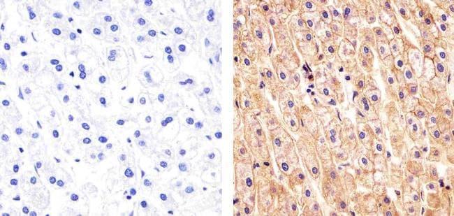 Pan-cadherin Antibody in Immunohistochemistry (Paraffin) (IHC (P))