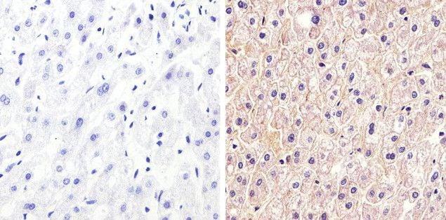 Claudin 1 Antibody in Immunohistochemistry (Paraffin) (IHC (P))