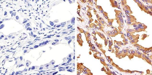 c-Met Antibody in Immunohistochemistry (Paraffin) (IHC (P))