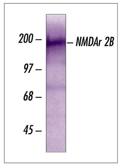 NMDAR2B Antibody in Western Blot (WB)