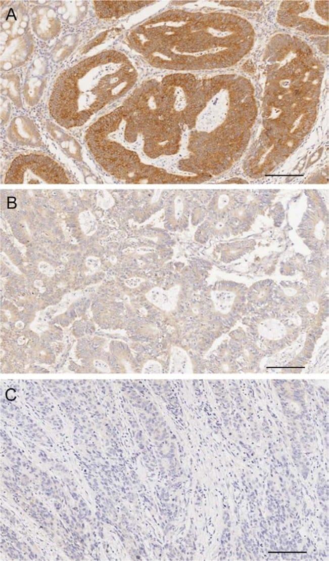 FHIT Antibody in Immunohistochemistry (IHC)