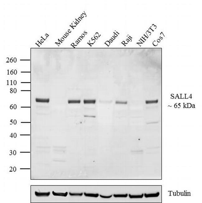 SALL4 Antibody in Western Blot (WB)