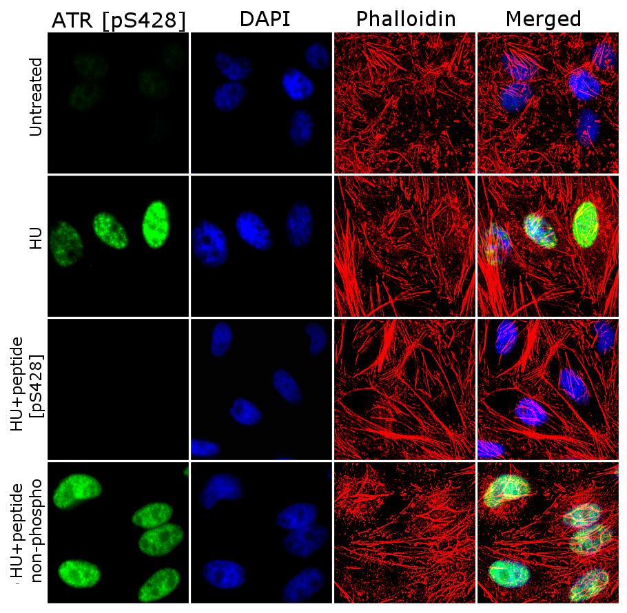 Phospho-ATR (Ser428) Antibody in Cell Treatment