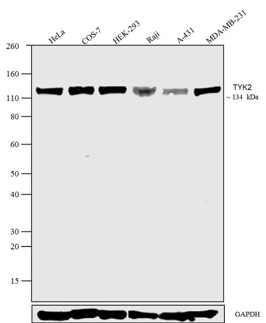 TYK2 Antibody in Western Blot (WB)