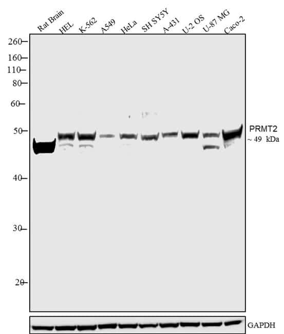 PRMT2 Antibody in Western Blot (WB)