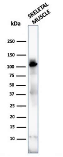 Sarcomeric Actinin Alpha 2/ACTN2 Antibody in Western Blot (WB)