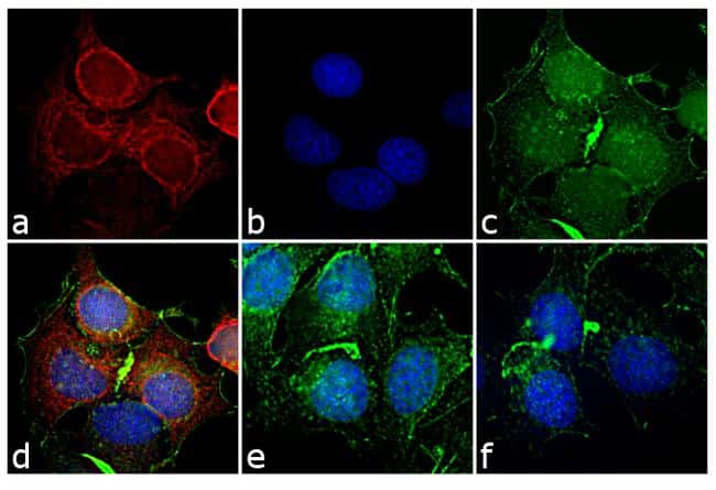 Mouse IgG2a Cross-Adsorbed Secondary Antibody in Immunofluorescence (IF)