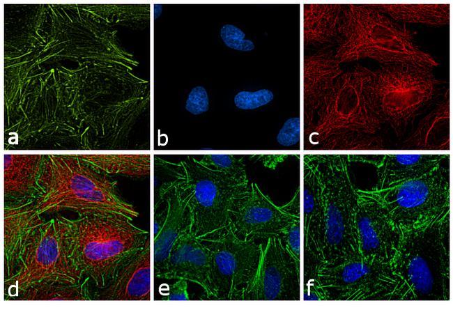 Rat IgG (H+L) Cross-Adsorbed Secondary Antibody in Immunofluorescence (IF)
