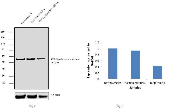 ATP Synthase beta Antibody in Western Blot (WB)