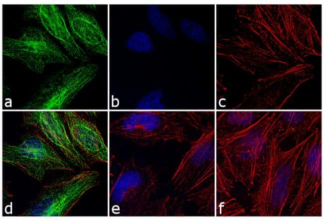 Rabbit IgG (H+L) Cross-Adsorbed Secondary Antibody in Immunocytochemistry (ICC/IF)