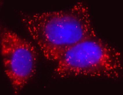ECHD Antibody in Immunofluorescence (IF)
