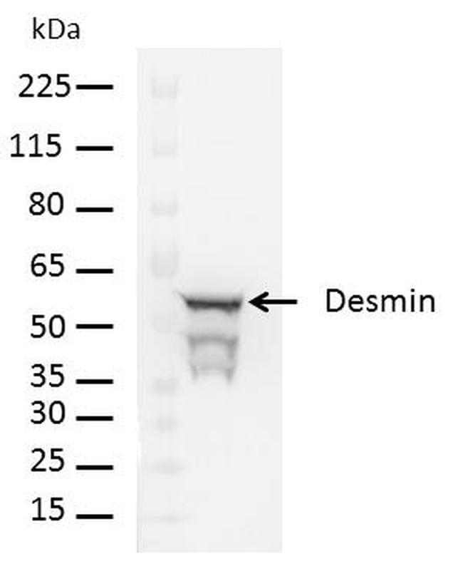 Rabbit IgG (H+L) Cross-Adsorbed Secondary Antibody in Western Blot (WB)