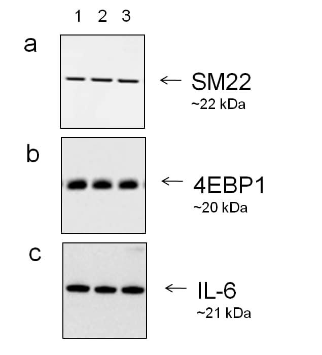 Goat IgG (H+L) Secondary Antibody in Western Blot (WB)
