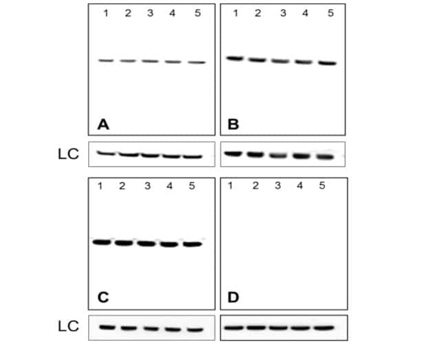 Mouse IgG (H+L) Secondary Antibody in Western Blot (WB)