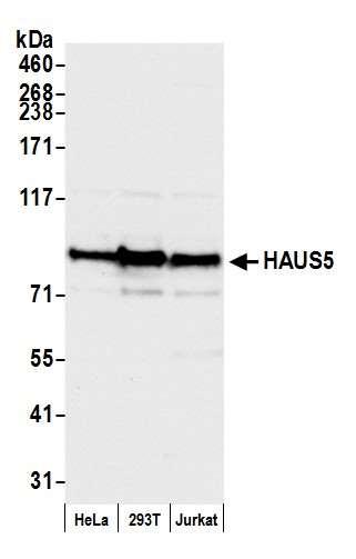 HAUS5 Antibody in Western Blot (WB)