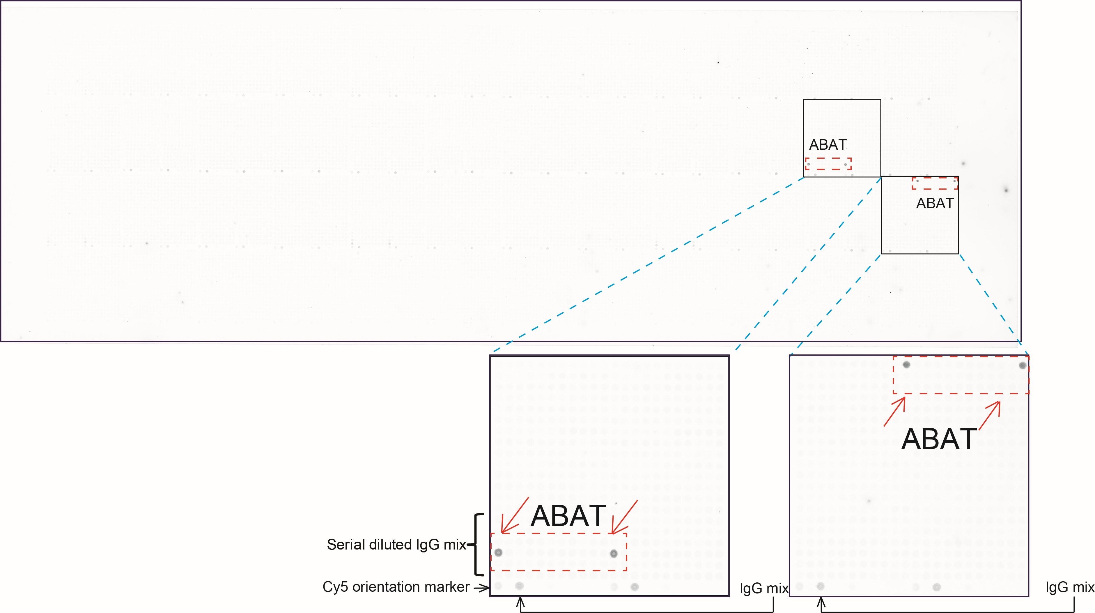 ABAT Antibody in Peptide array (ARRAY)