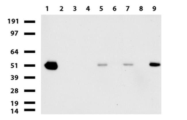 ABAT Antibody in Western Blot (WB)