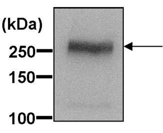 ABCA1 Antibody in Western Blot (WB)