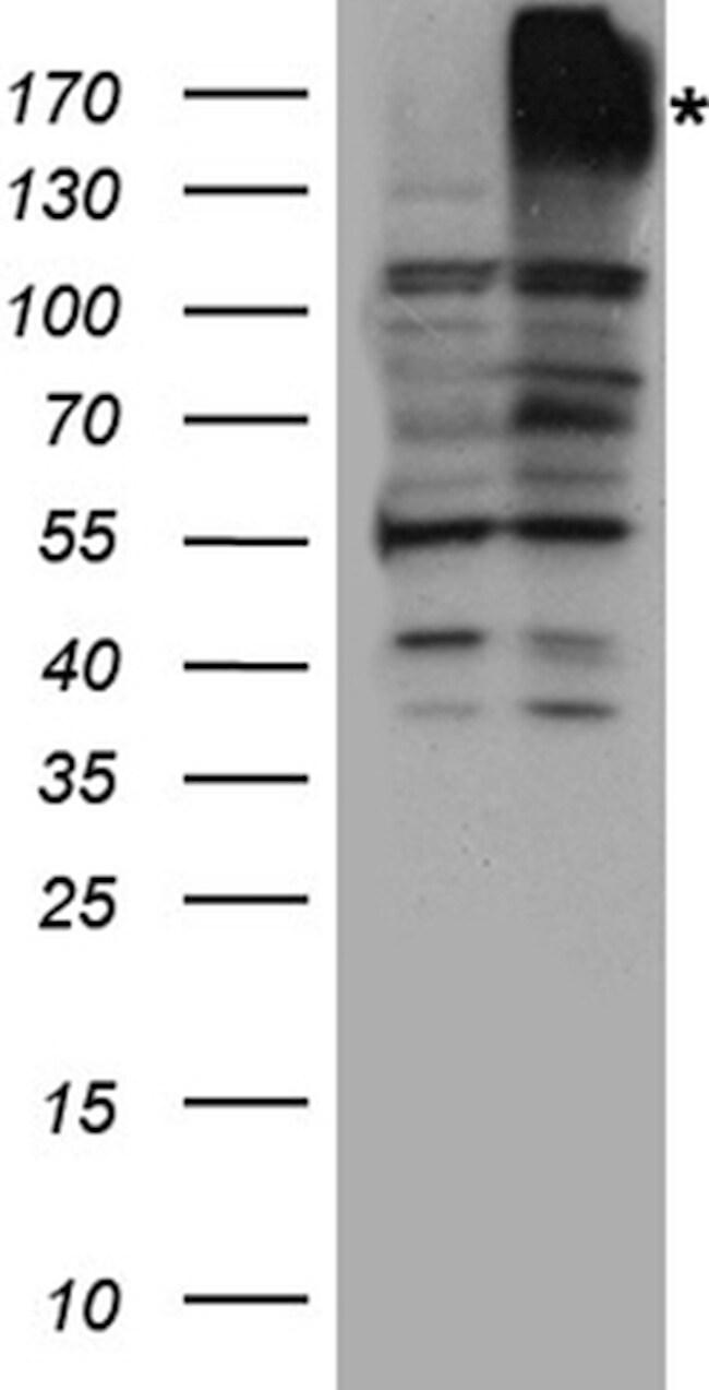 ABCB1 Antibody in Western Blot (WB)