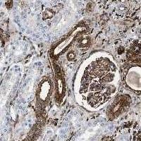 Gelsolin Antibody in Immunohistochemistry (Paraffin) (IHC (P))
