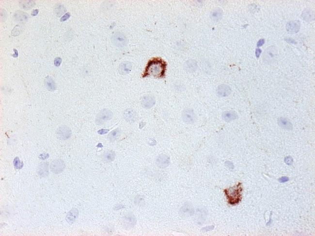 NPY Antibody in Immunohistochemistry (Paraffin) (IHC (P))