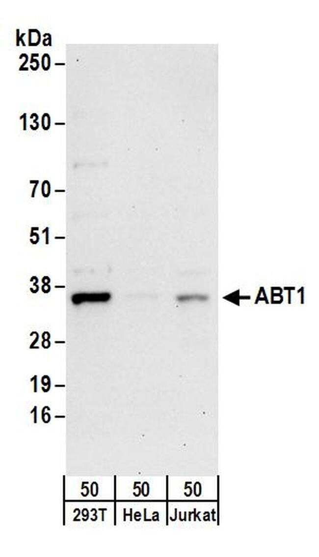 ABT1 Antibody in Western Blot (WB)