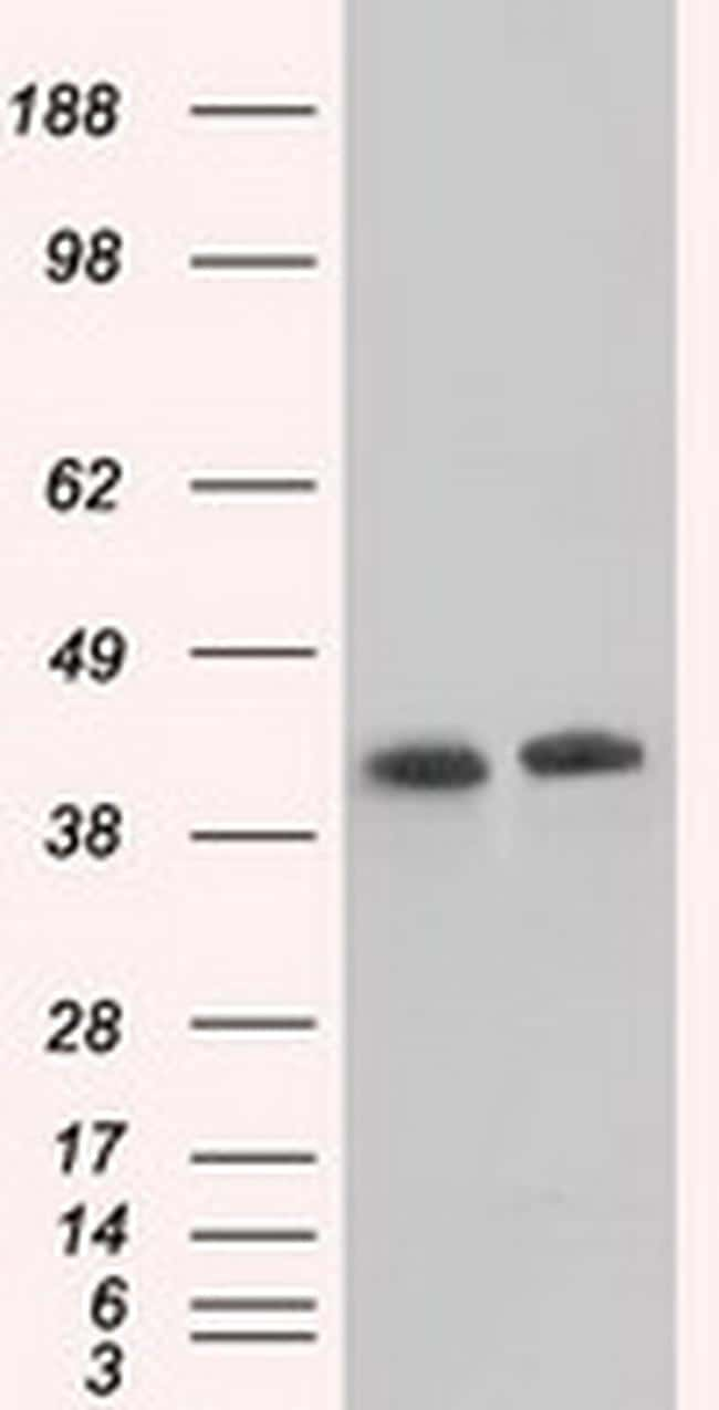 ACAT2 Antibody in Western Blot (WB)