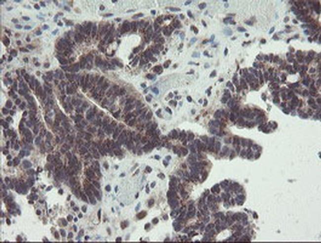 ACBD3 Antibody in Immunohistochemistry (Paraffin) (IHC (P))