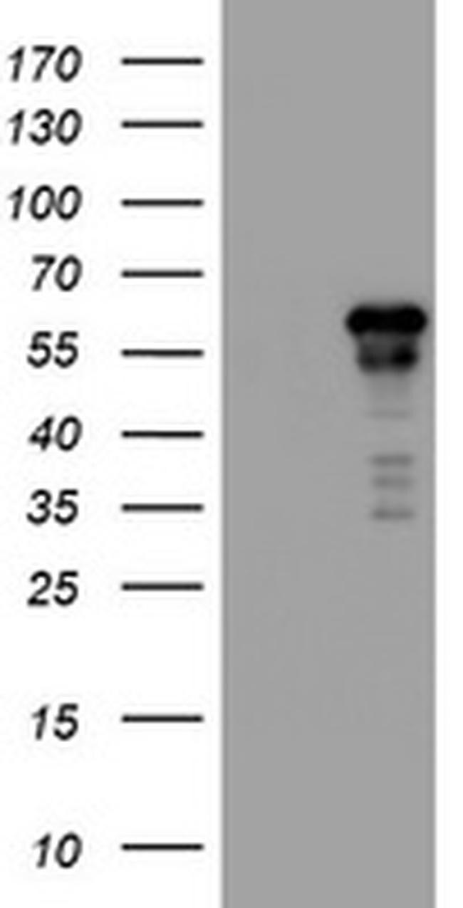 ACD Antibody in Western Blot (WB)