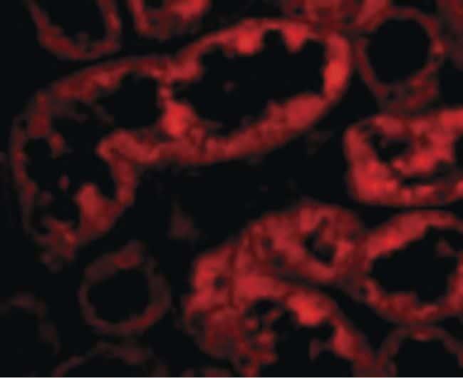 ACE2 Antibody in Immunofluorescence (IF)