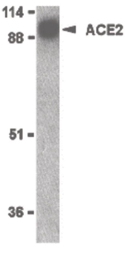 ACE2 Antibody in Western Blot (WB)