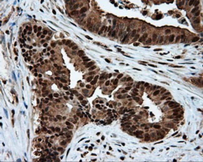 ACLY Antibody in Immunohistochemistry (Paraffin) (IHC (P))