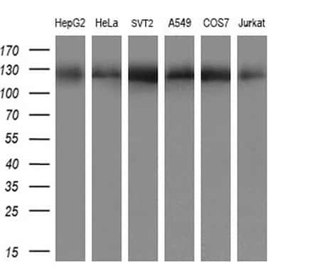 ACLY Antibody in Western Blot (WB)