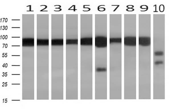 ACO2 Antibody in Western Blot (WB)