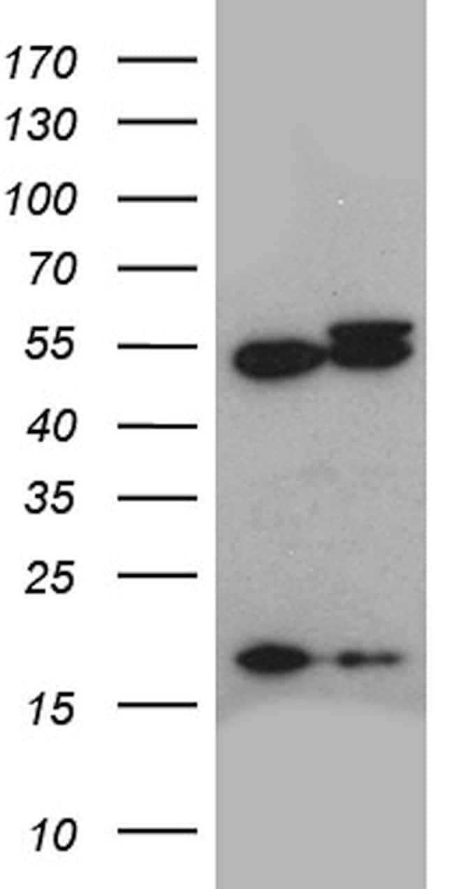 ACTR3 Antibody in Western Blot (WB)