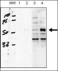 ACVRL1 Antibody in Western Blot (WB)