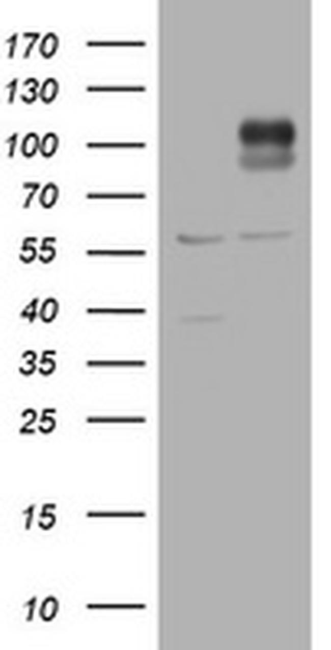 ADAMTS8 Antibody in Western Blot (WB)