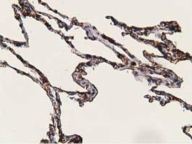 ADH1B Antibody in Immunohistochemistry (Paraffin) (IHC (P))