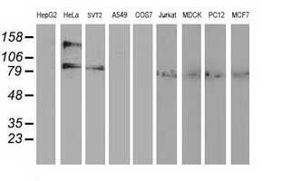 ADH1B Antibody in Western Blot (WB)