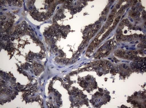 ADH5 Antibody in Immunohistochemistry (Paraffin) (IHC (P))