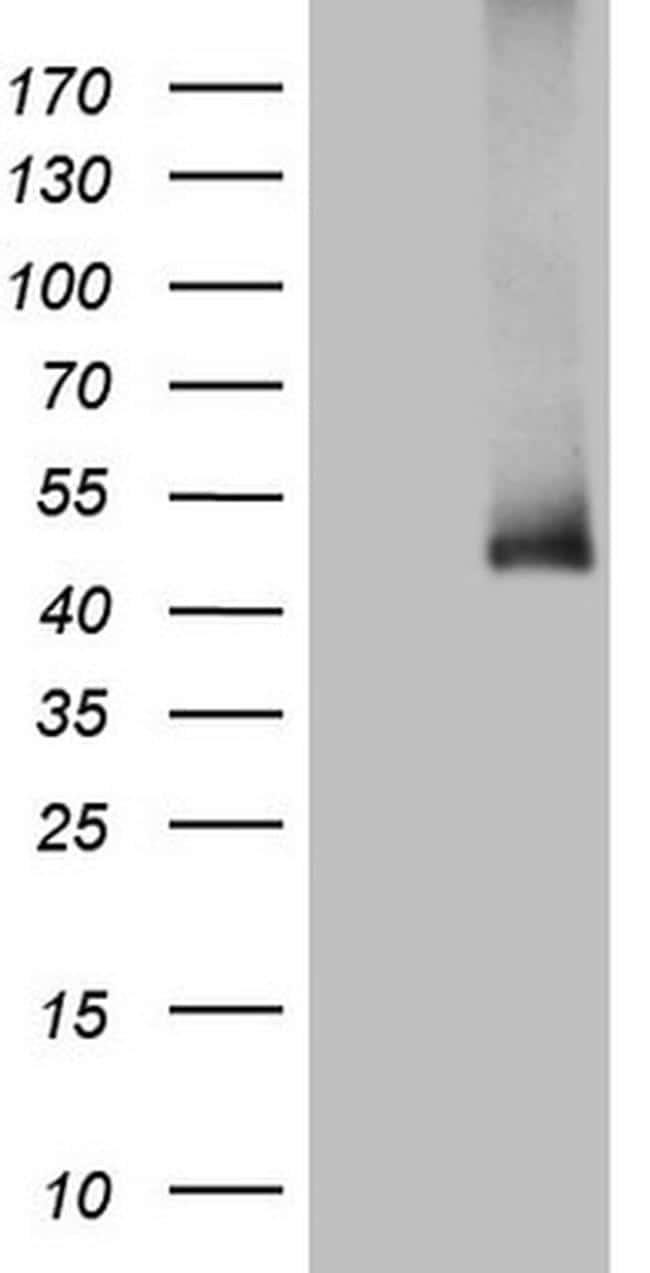 ADH5 Antibody in Western Blot (WB)