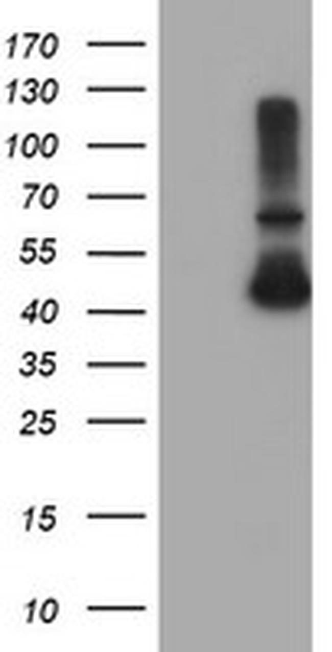 ADH7 Antibody in Western Blot (WB)