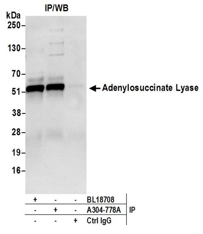 Adenylosuccinate Lyase/ADSL Antibody in Western Blot (WB)