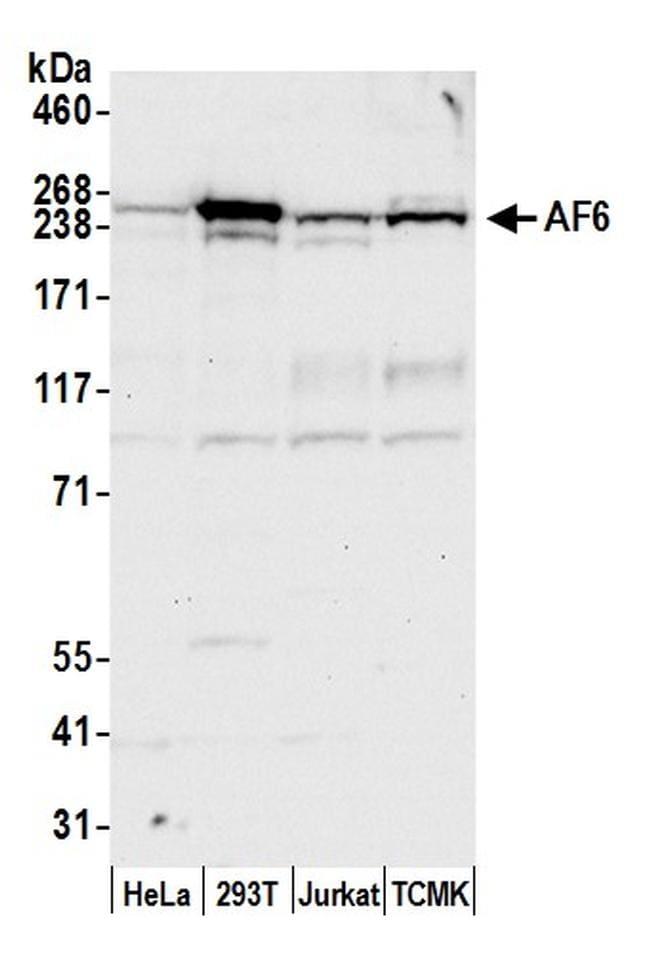 AF6 Antibody in Western Blot (WB)
