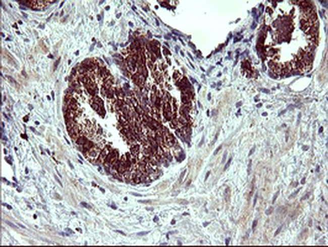 ARG2 Antibody in Immunohistochemistry (Paraffin) (IHC (P))